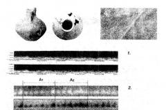 Рис. 1. Вибро-акустические исследования сарматского кувшина. 1 – сонограмма «звуковой дорожки», 2 – поиск периодического сигнала методом Фурье-преобразования, 3 – сравнительный анализ кардиографических и сфигмографических (СФ) исследований.